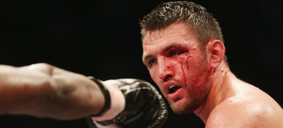 Hughie Fury is tough, talented and very, very tricky. Picture: Getty Images